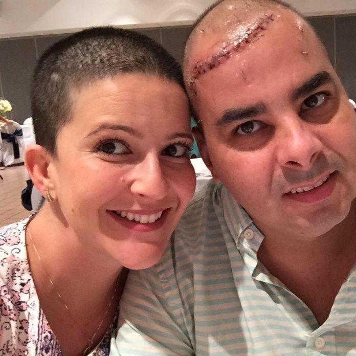 Júnior e a esposa Elisabeth que raspou os cabelos em solidariedade ao marido