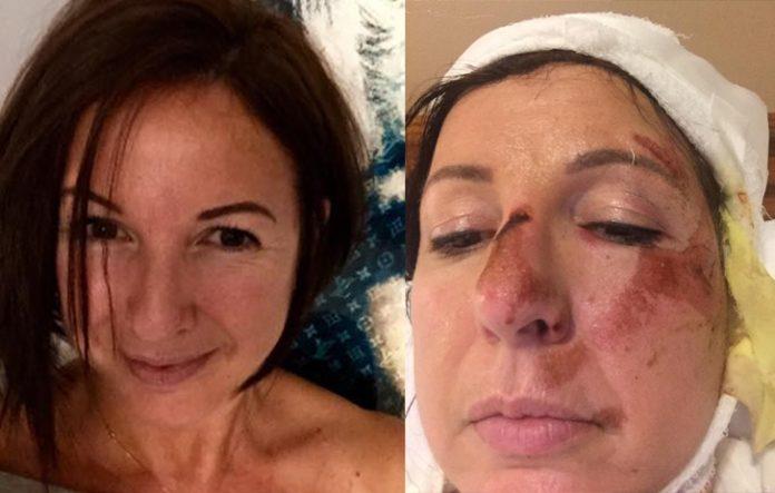 Rita antes e depois do acidente