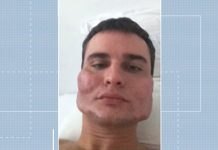 Rosto do empresário Alexandre Garzon atendido pelo médico Wesley Murakami