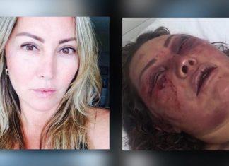 Elaine foi agredida por mais de quatro horas em seu apartamento no Rio