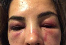 Josiane Theodoro foi violentamente agredida em MA
