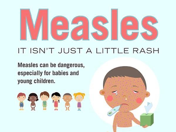 Casos de sarampo preocupam as autoridades de saúde Imagem: CDC