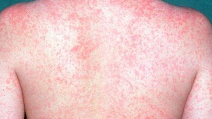 Sarampo pode ser prevenido com vacina