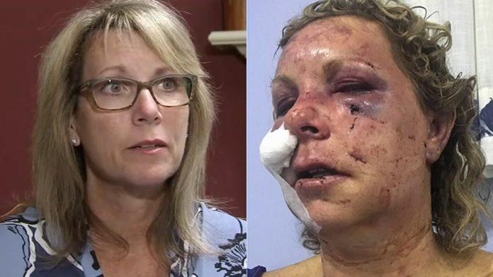 Turista foi atacada por horas em resort na República Dominicana