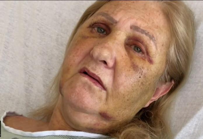 Maria Salete Ouvery foi transportada foi levada para a emergência do Broward Health Medical Center (foto: reprodução Local10 News)